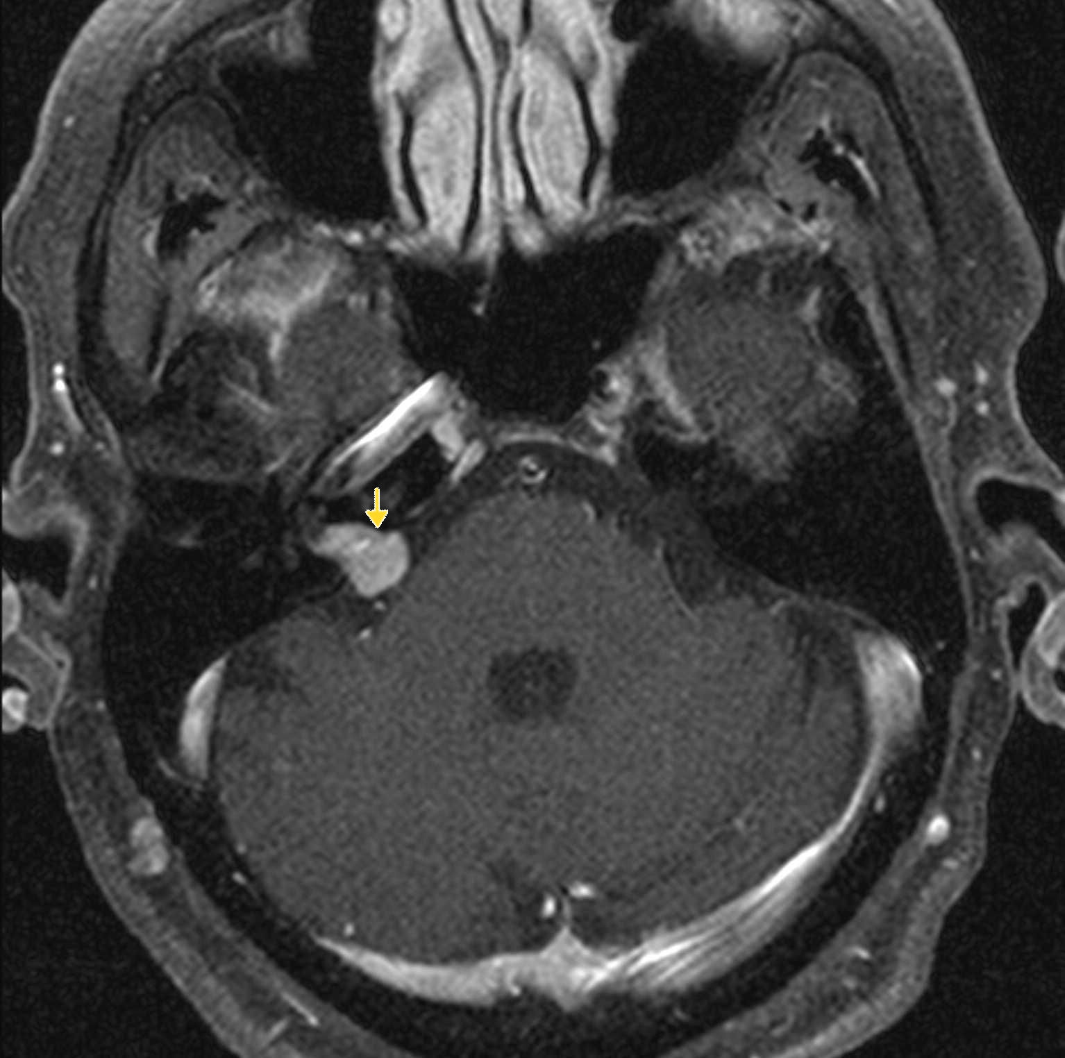 acoustic neuroma Acoustic neuroma - what are the tests for acoustic neuroma mri audiograms with differ ence in hearing between ears may require further evaluation, but mri scan with contrast material remins gold standard for diagnosis of acoustic neuroma some centers may have stacked abr testing but not.