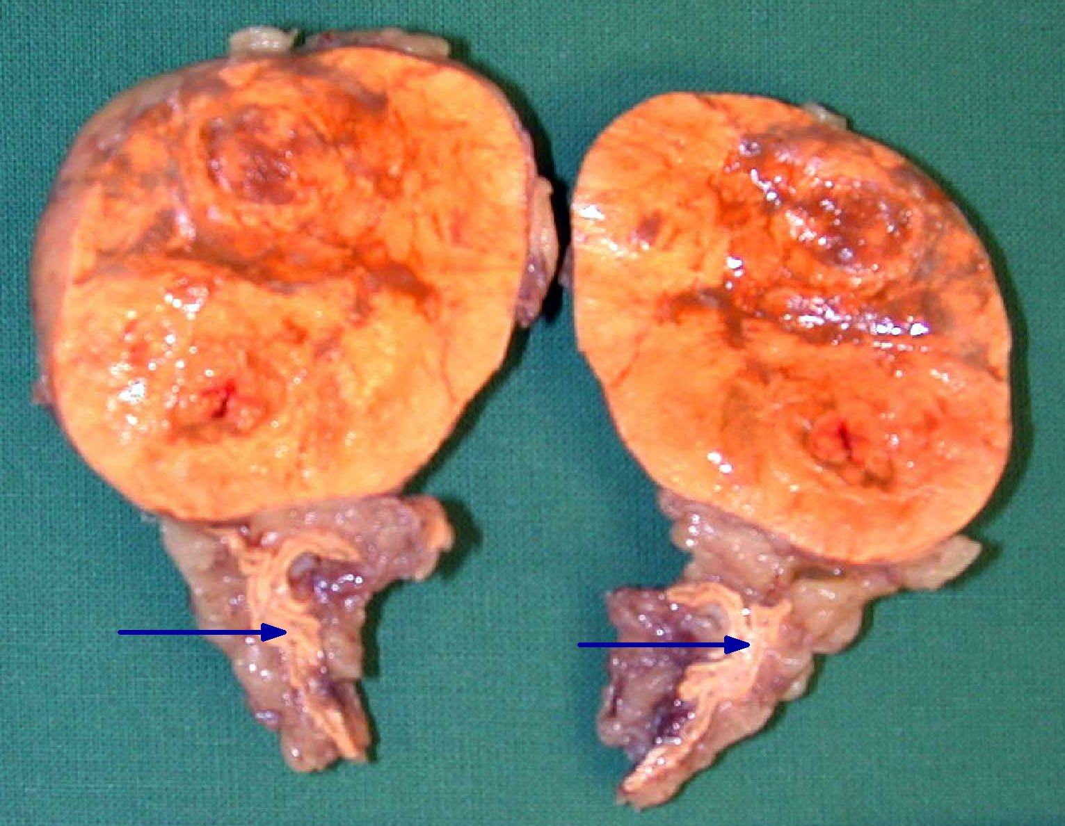 Right Adrenal Adenoma with Washout - Adrenal Case Studies