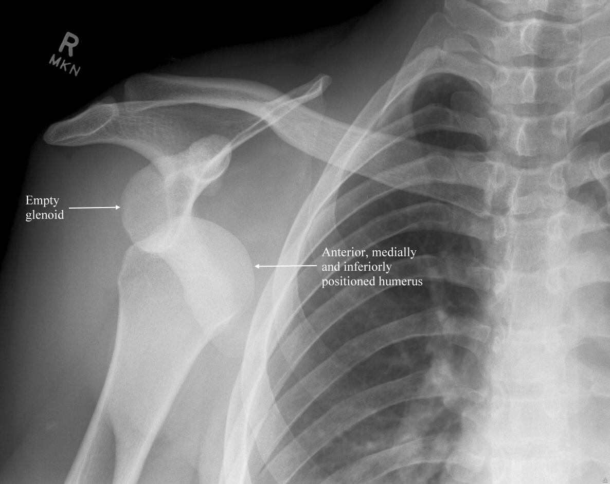 bilateral shoulder dislocation from weight lifting essay A shoulder subluxation is most likely causing her pain this is a partial dislocation of the shoulder and is caused by her overusing her shoulder this may cause a loose shoulder where her shoulder capsule will be stretched out as well as the ligaments.